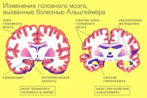 Новый способ диагностики болезни Альцгеймера. Изображение: Пресс-служба Минобрнауки России
