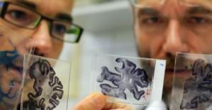 . Инновационный метод лечения болезни Альцгеймера